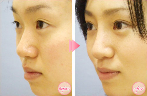注射隆鼻效果图 注射隆鼻 鼻综合整形 海南整形美容医院